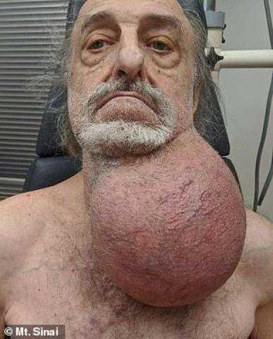 إزالة ورم سرطاني بحجم كرة قدم من رقبة أمريكي (صور)