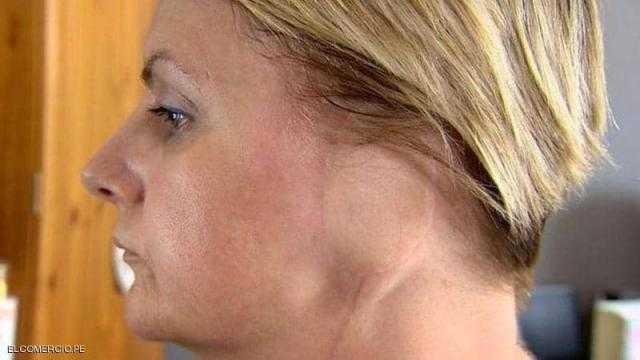 """امرأة بريطانية تفقد أذنها بسبب """"حمامات الشمس"""""""