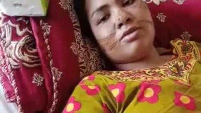 لا يوجد جزء من جسدها دون إصابات.. ١٢٥٠ غرزة يتسبب فيها جزار لطليقته بالسويس
