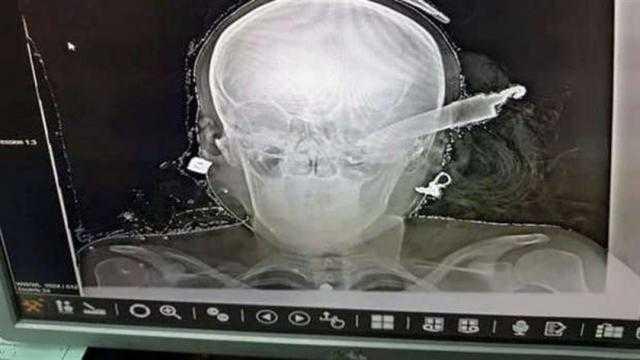 تجديد حبس عاطل غرس سكيناً في رأس زوجة شقيقة بالمنوفية