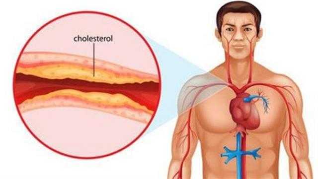أعراض زيادة الكوليسترول في الدم