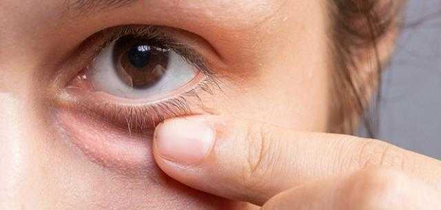 5 نصائح فعالة للتخلص من تورم الجفون