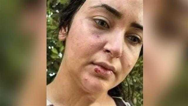 اتهمت زملاءها بضربها بسبب الحجاب.. تفاصيل حبس الصيدلانية إيزيس بالشرقية
